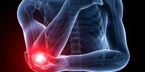 What Is Tennis Elbow Pain At Night?